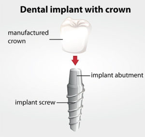 Dental implant with crown diagram