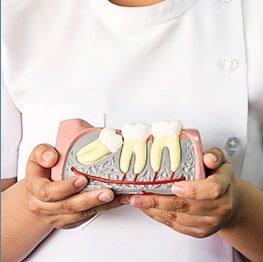 Wisdom Teeth Diagram