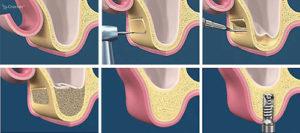 sinusliftlateral